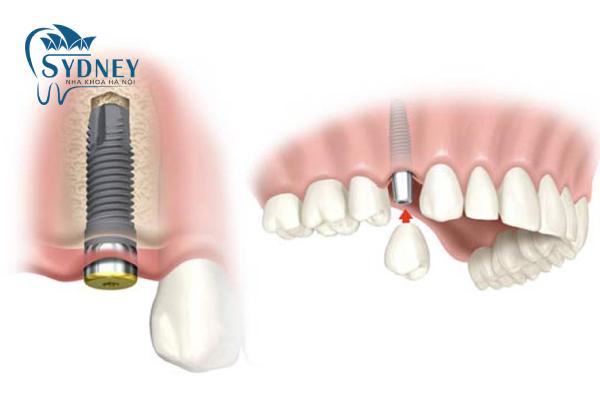Nêu chăm sóc răng thường xuyên khi trồng răng giả xong