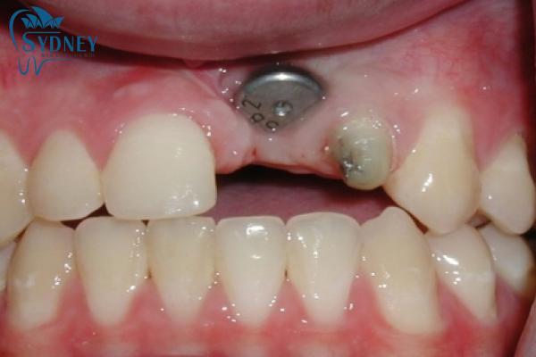 Cấy ghép trụ implant vào xương hàm