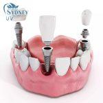 Quy trình trồng răng implant như thế nào?