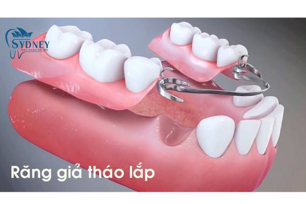 Răng giả tháo lắp có rất nhiều ưu điểm