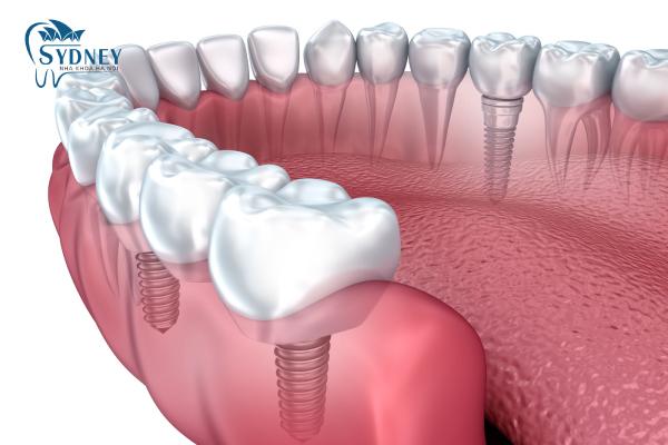 Trồng răng implant liệu có nguy hiểm như bạn nghĩ