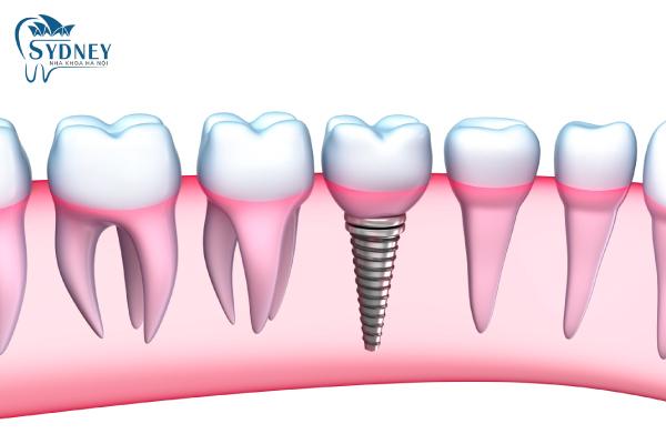 Răng implant có cấu tạo ê phần
