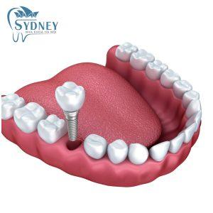Các bước trồng răng sứ tại nha khoa sydney