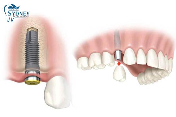 Trồng răng implant an toàn và thích hợp cho mọi đối tượng