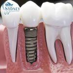 Trồng răng implant ở đâu tốt?