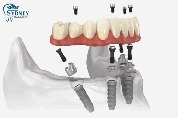 Kỹ thuật cấy ghép implant rất phức tạp