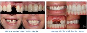 Cách trồng răng cửa bằng răng giả tháo lắp?