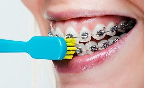 Đánh răng khi niềng