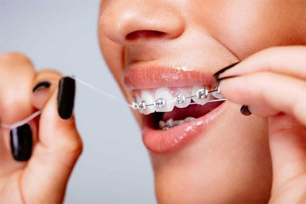 Dùng chỉ nha khoa khi niềng răng sứ