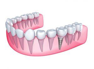 Trồng răng cấm bằng phương pháp cấy ghép implant