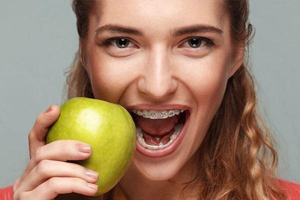 Khi đang niềng răng nên ăn gì?