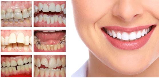 Khi nào nên trồng răng sứ