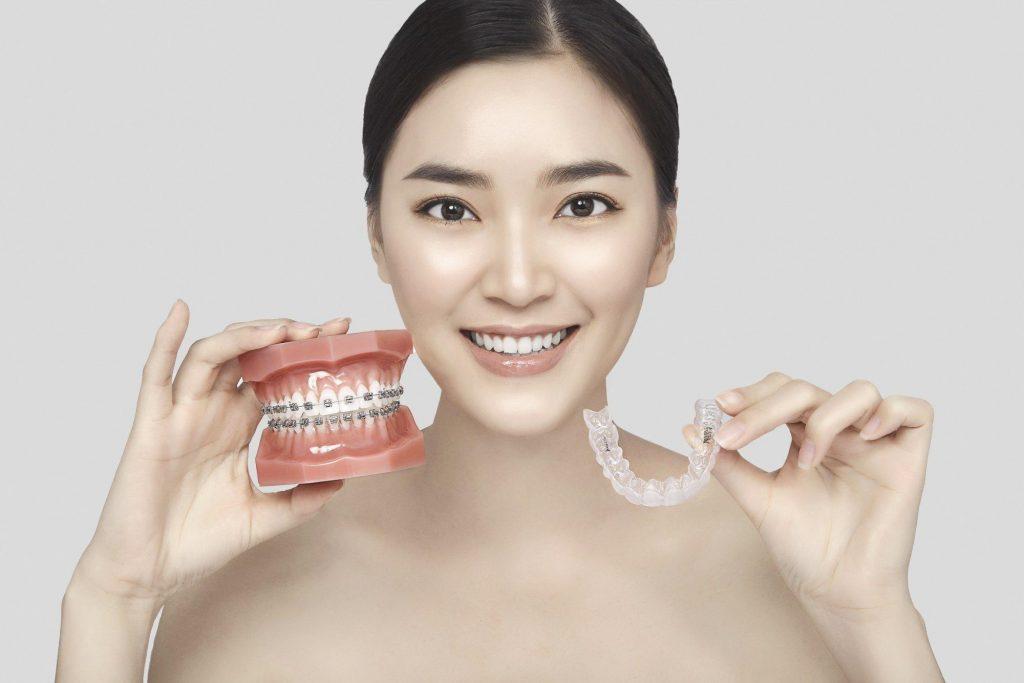 Khuyết điểm của niềng răng 3D Clear