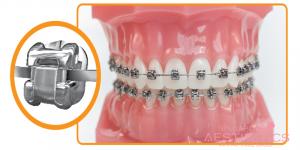 Phương pháp niềng răng mắc cài kim loại tự buộc