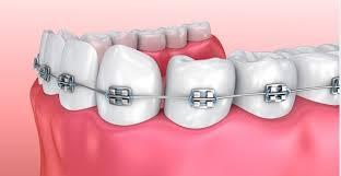 Niềng răng bằng phương pháp mắc cài kim loại tại nha khoa sydney