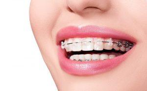 Niềng răng bằng phương pháp mắc cài sứ tại nha khoa sydney