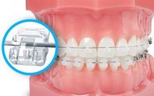 Phương pháp niềng răng mắc cài sứ tự buộc.