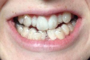 Niềng răng Invisalign cho răng khểnh