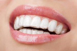 Niềng răng Invisalign là gì