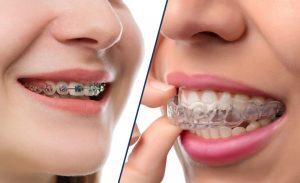 Niềng răng Invisalign và niềng răng mắc cài kim loại