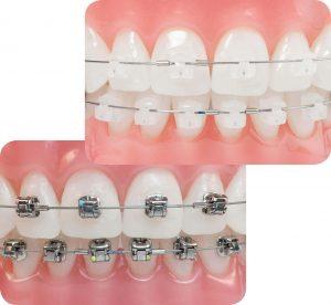 Niềng răng mắc cài pha lê có những lợi ích gì.
