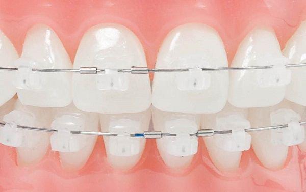 Niềng răng sứ thường