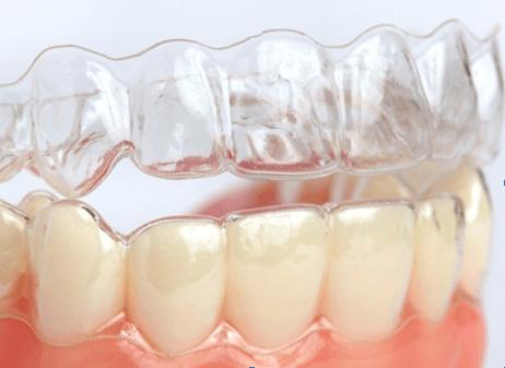 niềng răng hàm dưới không mắc cài
