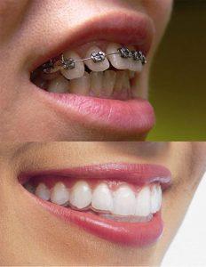 phương pháp niềng răng hô