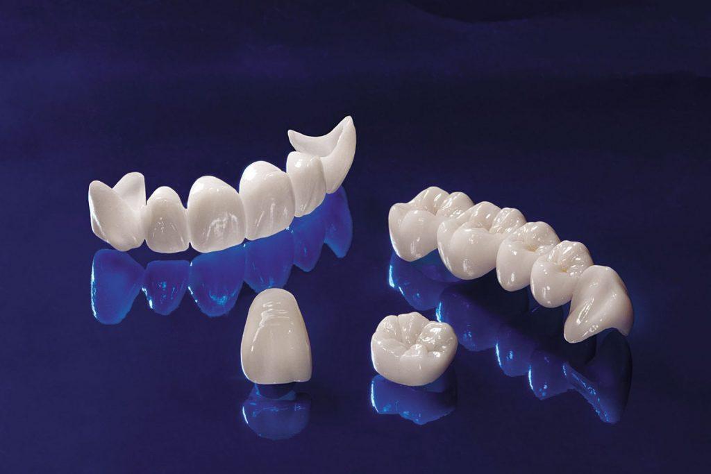 Răng toàn sứ