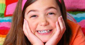 Trẻ em không nên niềng răng mặt trong