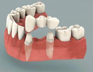 Trồng răng cấm bằng phương pháp cầu răng sứ