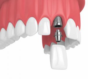 Cấy ghép răng Implant: