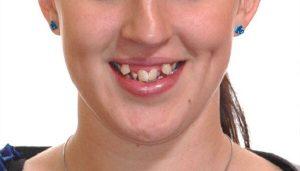 trường hợp cần niềng răng khểnh