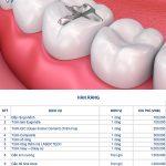 Bảng giá hàn răng