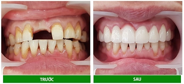 Trước và sau khi trồng răng sứ Titan