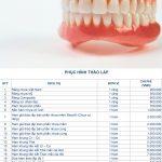 Bảng giá phục hình răng tháo lắp