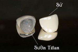 Trồng răng sứ giá rẻ với răng sứ titan.