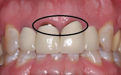 Khuyết điểm của trồng răng sứ Titan