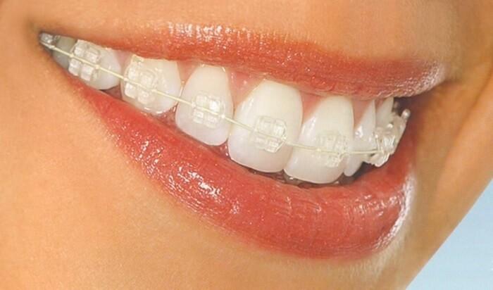 Niềng răng mắc cài sapphire