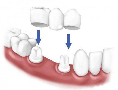 Phục hình răng cố định