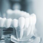 Những điều cần biết trước khi điều trị chỉnh nha – niềng răng