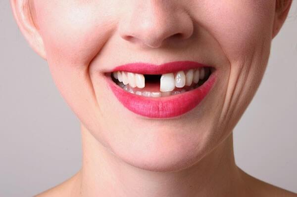 Trường hợp cần trồng răng thẩm mỹ